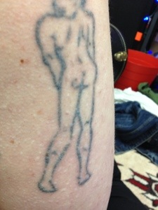 Laser tattoo removal progress